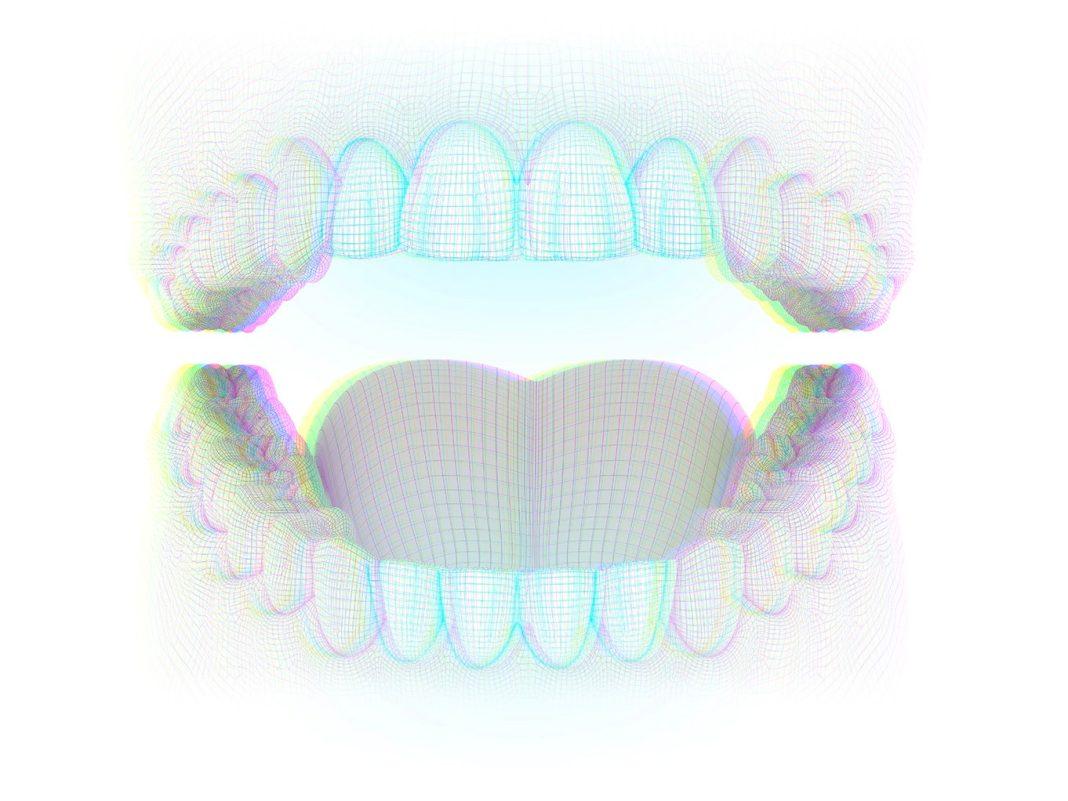 Dentes Incisivos