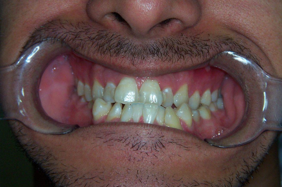 Dentes tortos